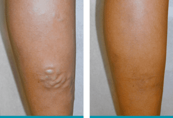 Before and After large bulgin varicose veins